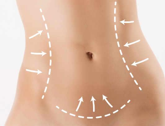 Servicios cirugía plástica y estética, cirugía corporal