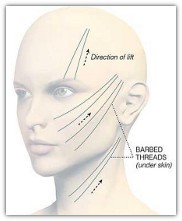 Tratamiento de medicina estética facial Lifting Suave Con Hilos Lift