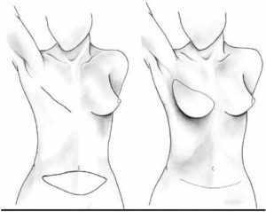 Cirugía Estética Colgajo DIEP para Reconstrucción Mamaria