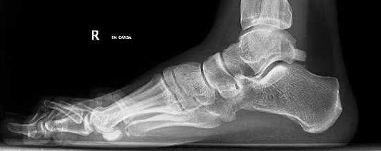 El dolor es la manifestación constante de los pacientes que presentan la lesión o Síndrome de Pinzamiento Posterior de Tobillo.