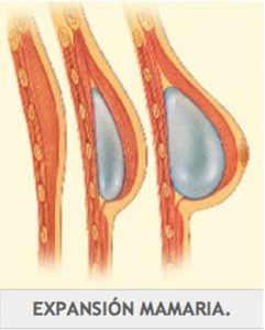 Reconstrucción mamaria tras masectomía