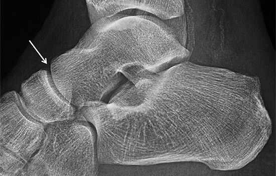 La afectación por artrosis de la articulación Astrágalo Escafoidea es poco frecuente de forma aislada. Se ve con frecuencia en grado leve en pacientes con artrosis de otras articulaciones del pie y tobillo