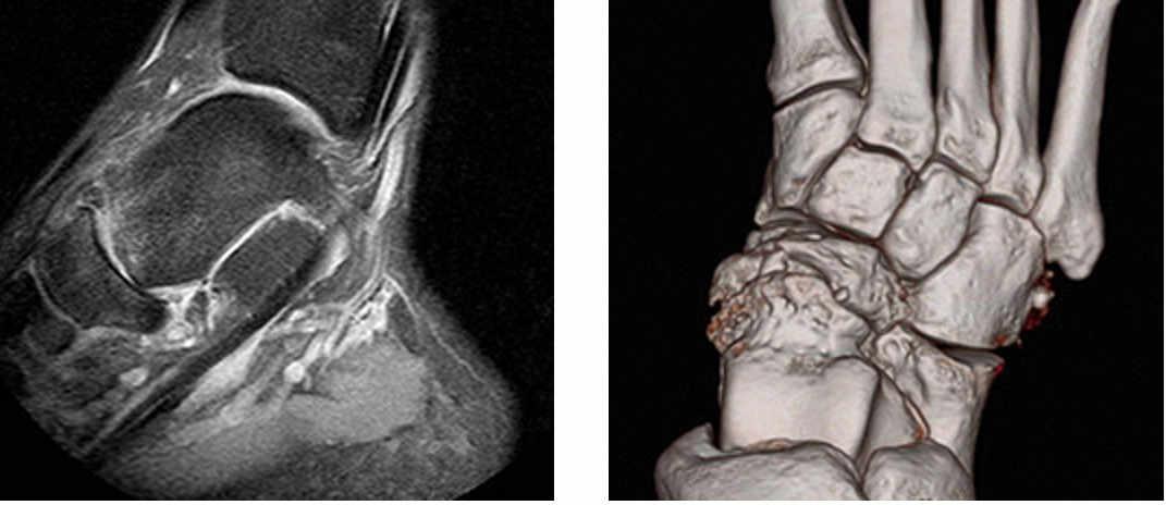 Radiografía Lateral. Artrosis Astragalo-escafoidea