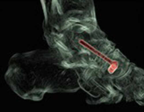si el tratamiento conservador anteriormente descrito no es eficaz en el control del dolor recomendamos la cirugía que consiste en la artrodesis astragaloescafoidea