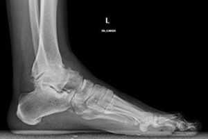 Los pacientes afectados de artrosis de tobillo presentan por el dolor al caminar y limitación de movimiento del tobillo.