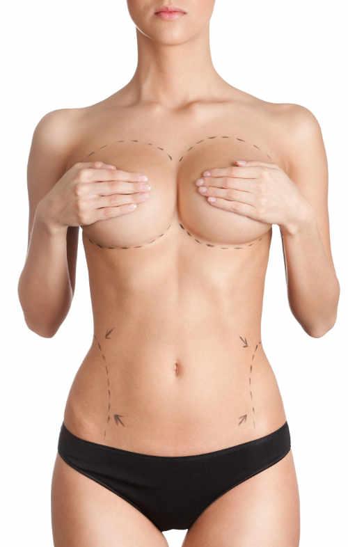 """Llamamos """"lipoescultura"""" a la remodelación del contorno corporal mediante la liposucción."""