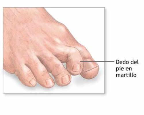 los dedos en martillo generalmente se inician como deformaciones leves y empeoran progresivamente con el tiempo