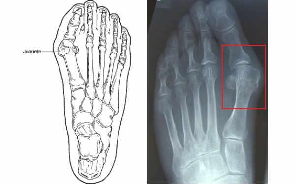 es frecuente en el hallux valgus la aparición de una bolsa medial a la prominencia de la articulación debido a la presión ejercida por un calzado ajustado que puede ser dolorosa