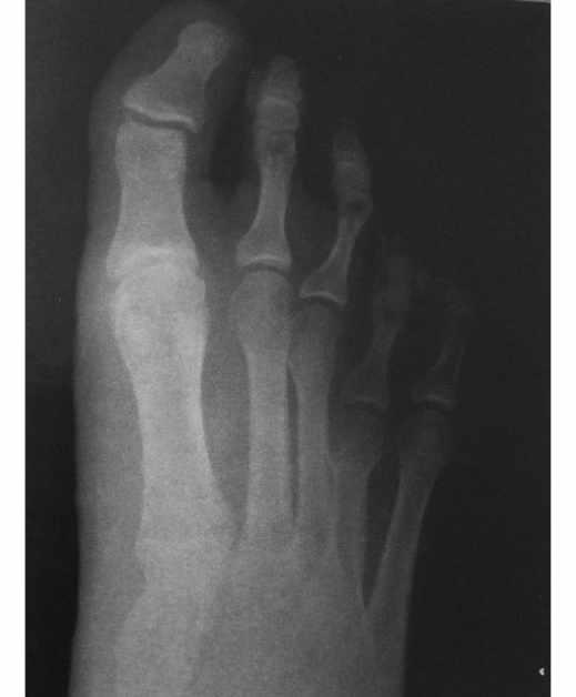 Radiografía de paciente con metatarsalgia previa a someterse a Cirugía