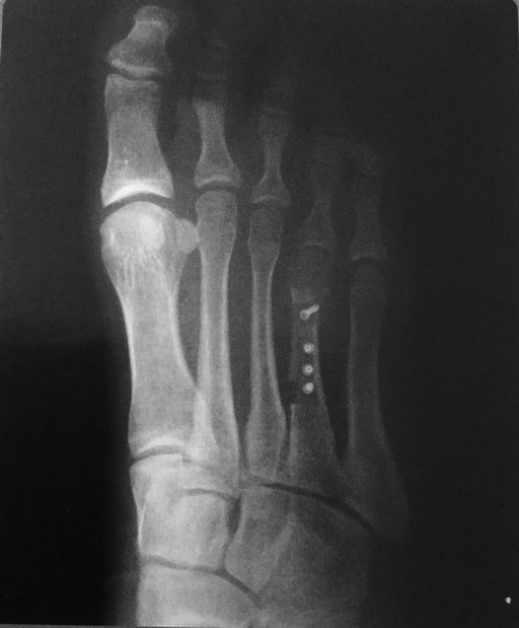 Radiografía de Postoperatorio alargamiento con injerto óseo y mini tornillos canulados.