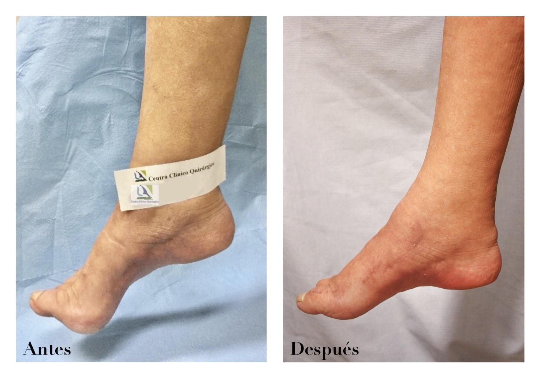 transposicion tendinosa en el tobillo y pie